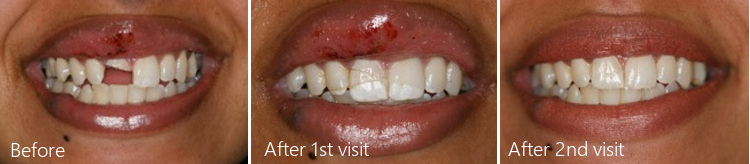 dental crowns before and after two treatments